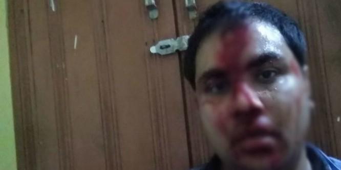 सीएमओ के साथ मारपीट करने वाले बीजेपी नेता की जमानत खारिज, पहुंचे जेल