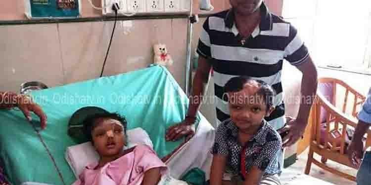 Separated Conjoined Twins Jaga, Kalia Likely To Return Odisha Soon